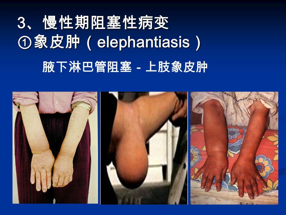 3、慢性期阻塞性病变 ①象皮肿(elephantiasis)
