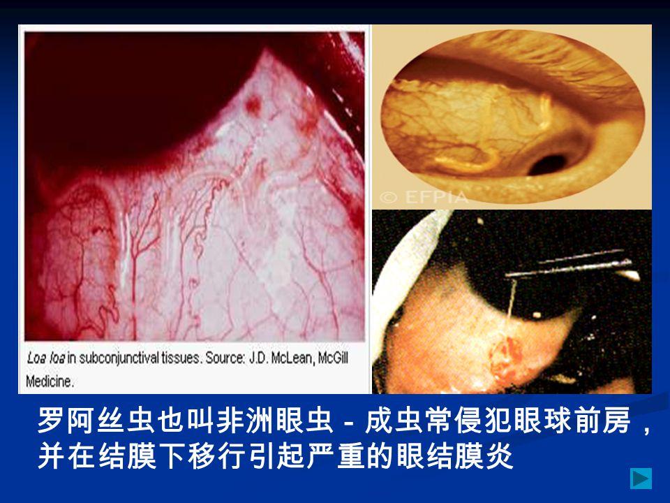 罗阿丝虫也叫非洲眼虫-成虫常侵犯眼球前房,并在结膜下移行引起严重的眼结膜炎