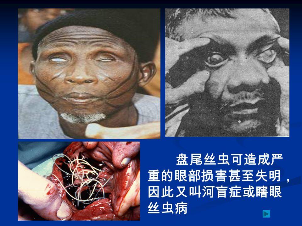 盘尾丝虫可造成严重的眼部损害甚至失明,因此又叫河盲症或瞎眼丝虫病