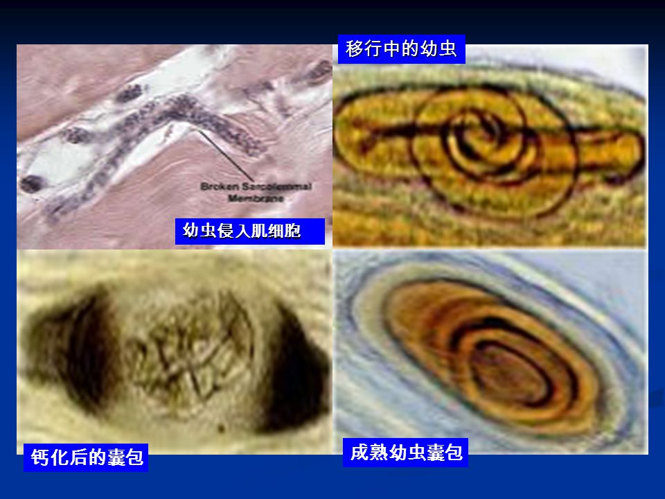 移行中的幼虫 幼虫侵入肌细胞 成熟幼虫囊包 钙化后的囊包