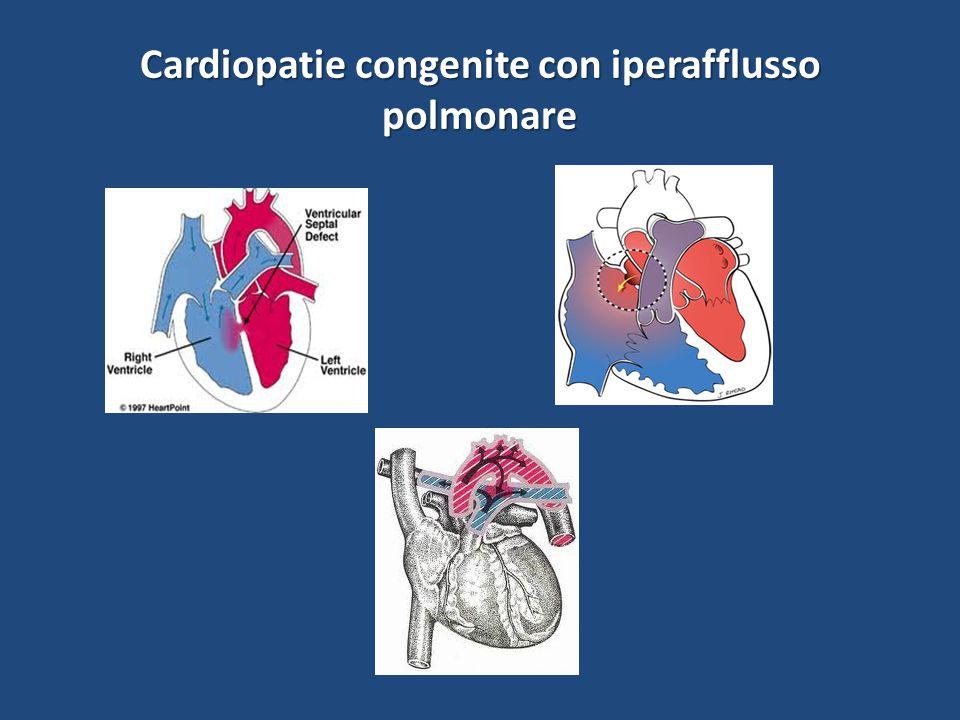 Cardiopatie congenite con iperafflusso polmonare