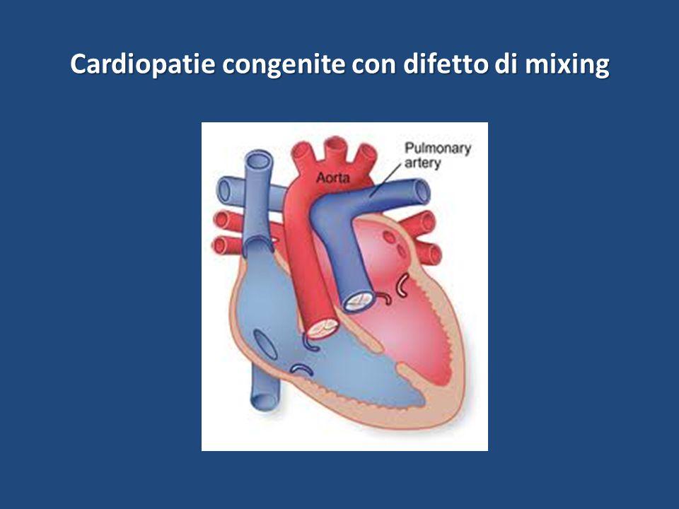 Cardiopatie congenite con difetto di mixing