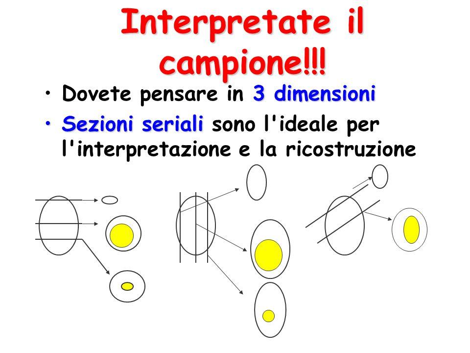 Interpretate il campione!!!