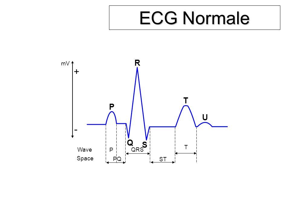 ECG Normale R mV + T P U - Q S T Wave P QRS Space PQ ST