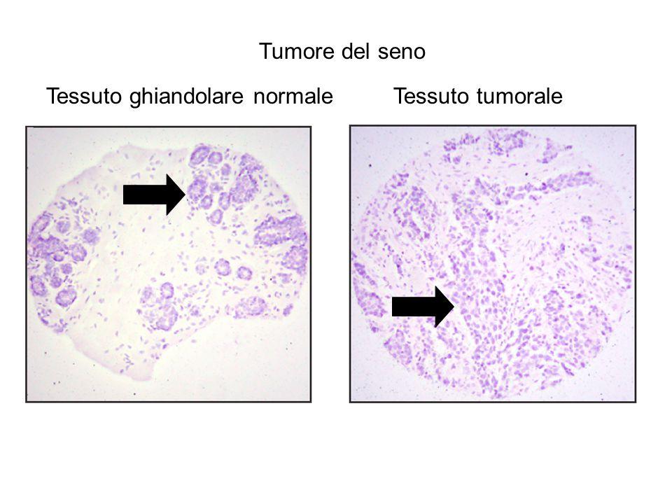 Tumore del seno Tessuto ghiandolare normale Tessuto tumorale