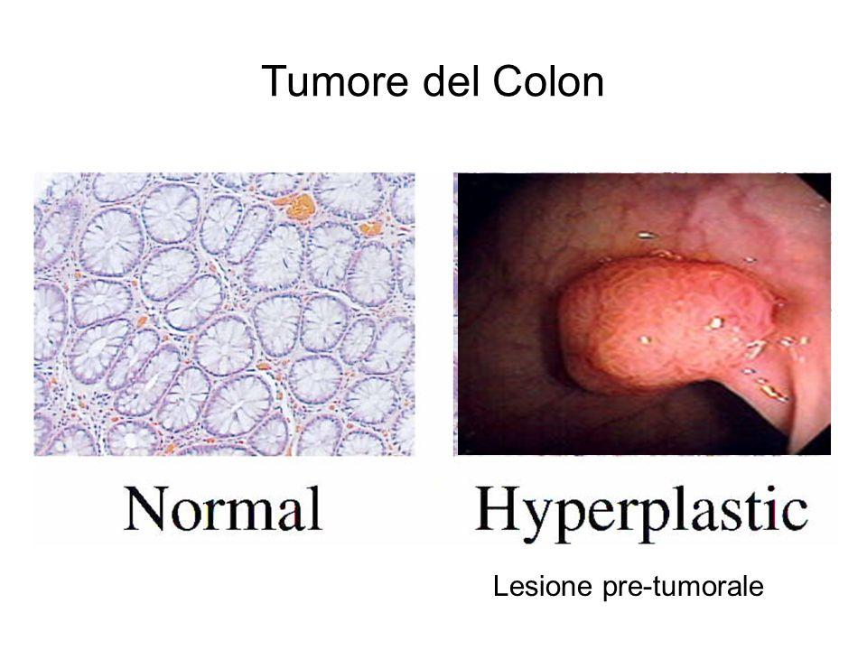 Tumore del Colon Lesione pre-tumorale