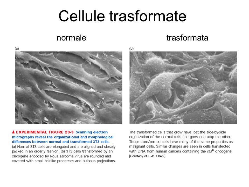 Cellule trasformate normale trasformata