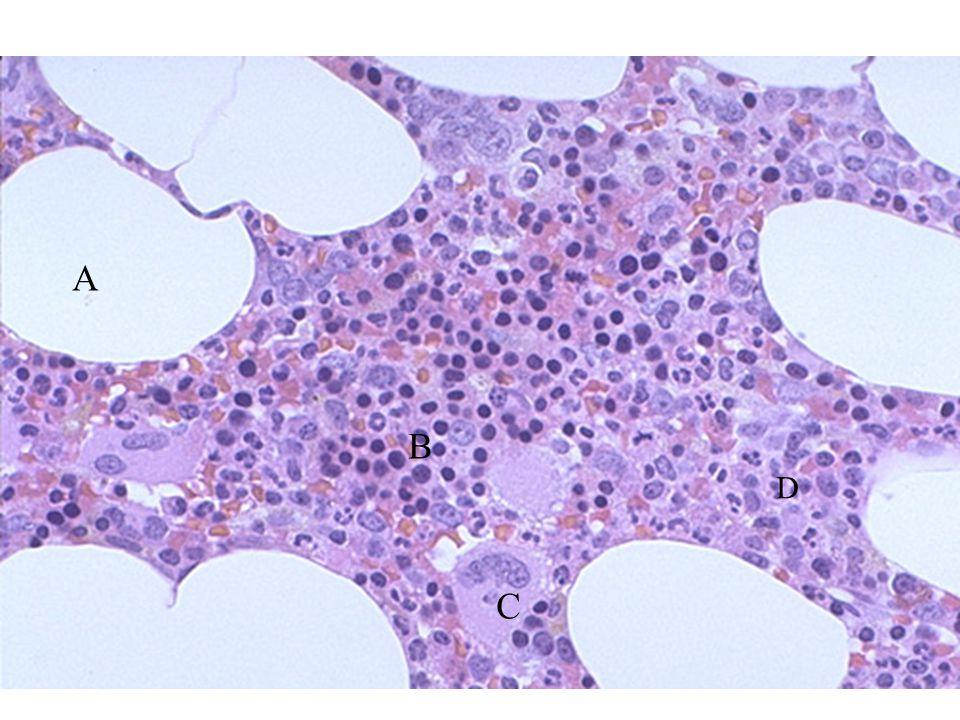 A B C D Biopsia ossea; midollo normale