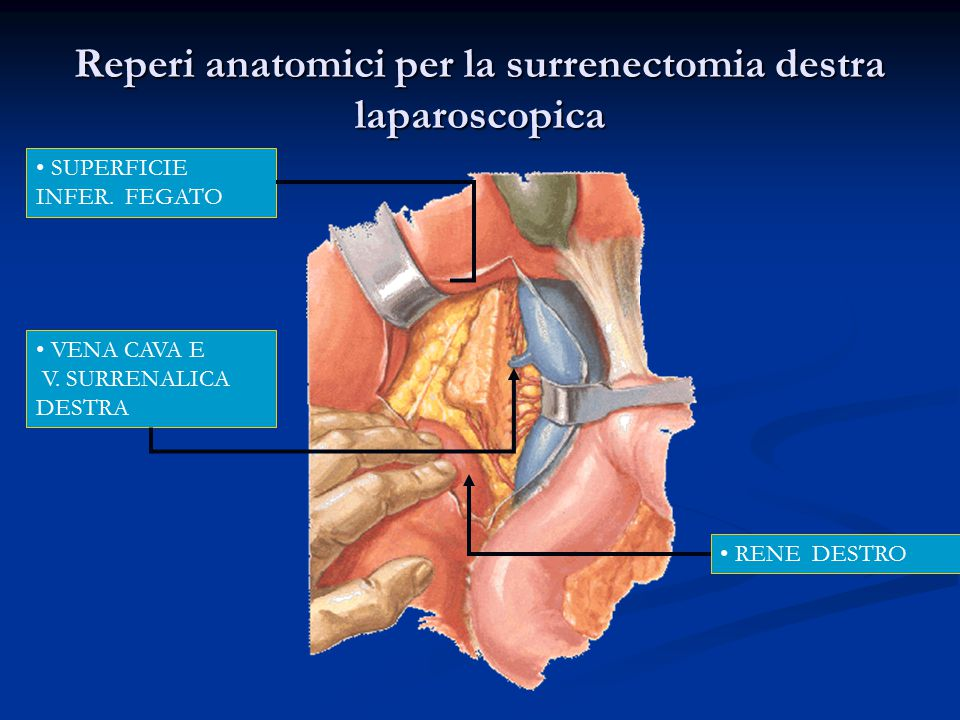 Reperi anatomici per la surrenectomia destra laparoscopica