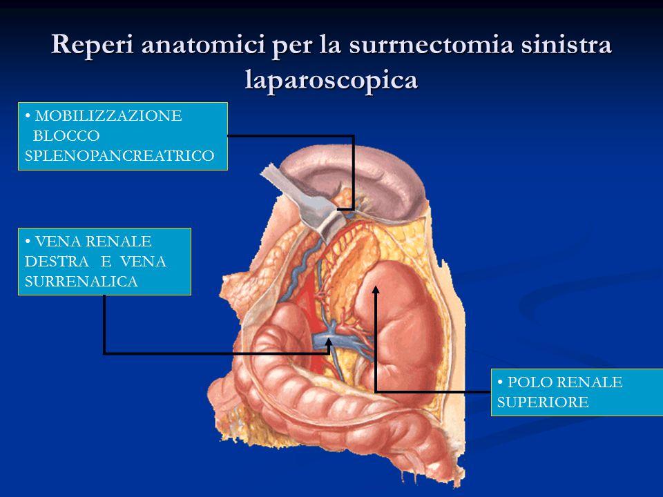 Reperi anatomici per la surrnectomia sinistra laparoscopica