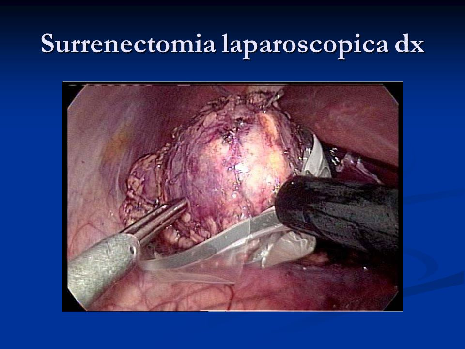 Surrenectomia laparoscopica dx