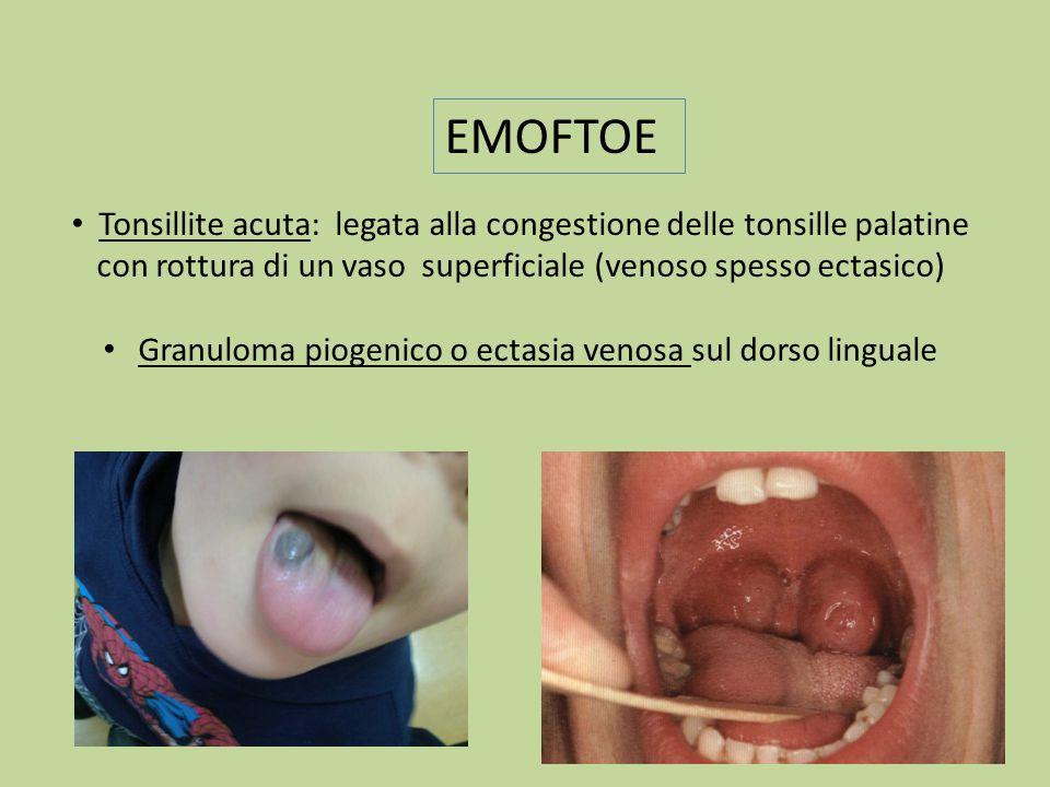 Granuloma piogenico o ectasia venosa sul dorso linguale