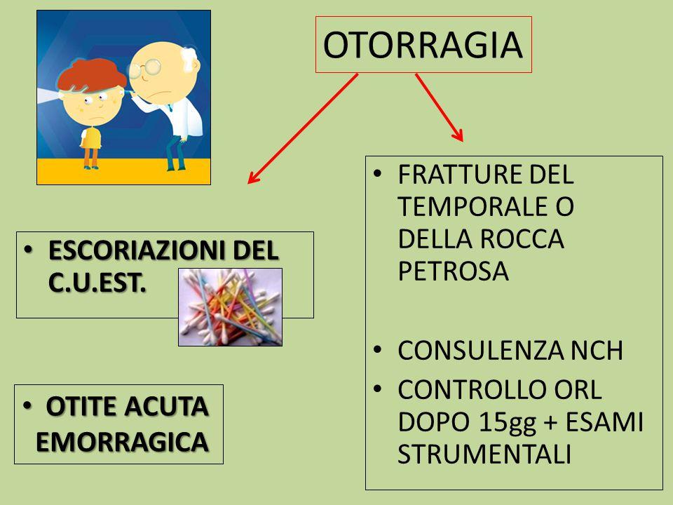 OTORRAGIA FRATTURE DEL TEMPORALE O DELLA ROCCA PETROSA