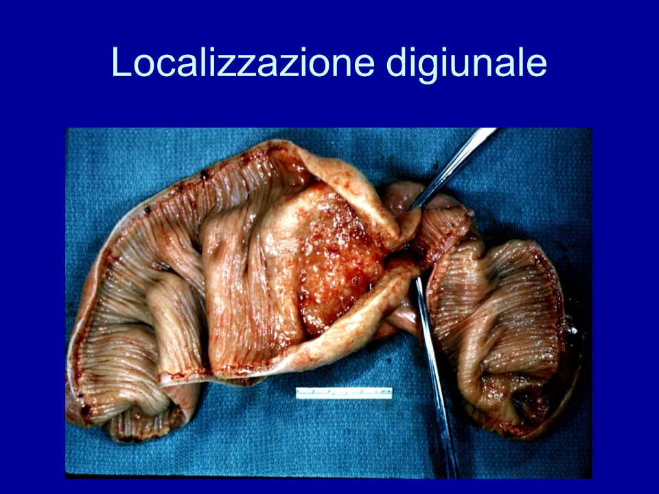 Localizzazione digiunale