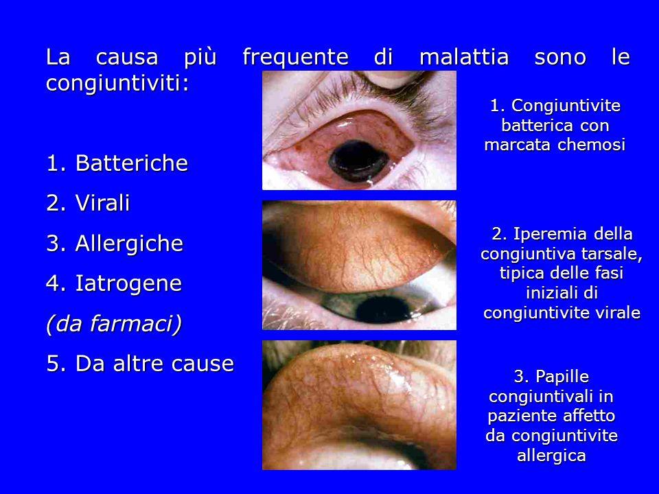 1. Congiuntivite batterica con marcata chemosi