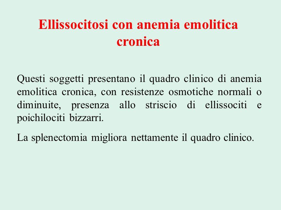 Ellissocitosi con anemia emolitica cronica
