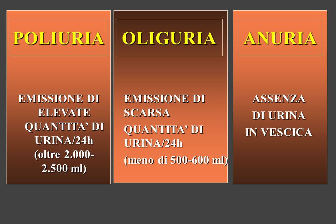 EMISSIONE DI ELEVATE QUANTITA' DI URINA/24h (oltre 2.000-2.500 ml)