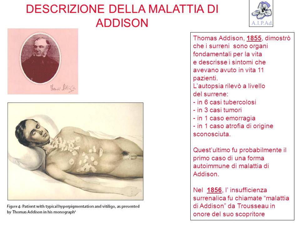 DESCRIZIONE DELLA MALATTIA DI ADDISON