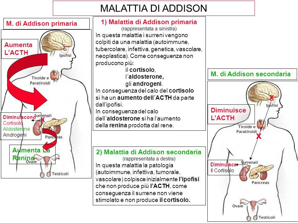 2) Malattia di Addison secondaria