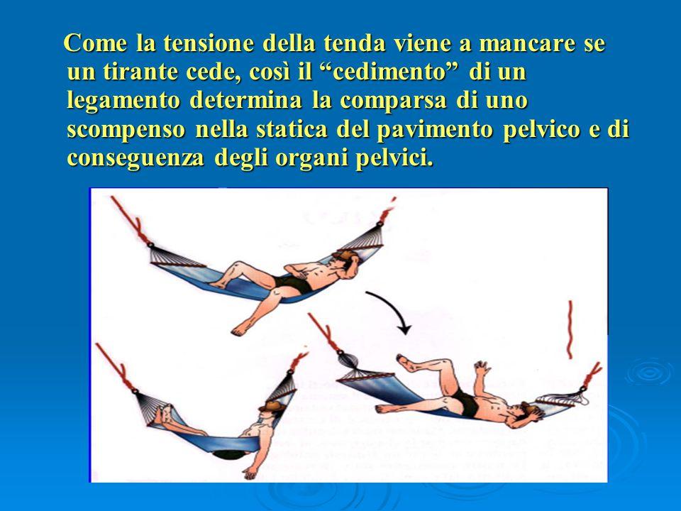 Come la tensione della tenda viene a mancare se un tirante cede, così il cedimento di un legamento determina la comparsa di uno scompenso nella statica del pavimento pelvico e di conseguenza degli organi pelvici.