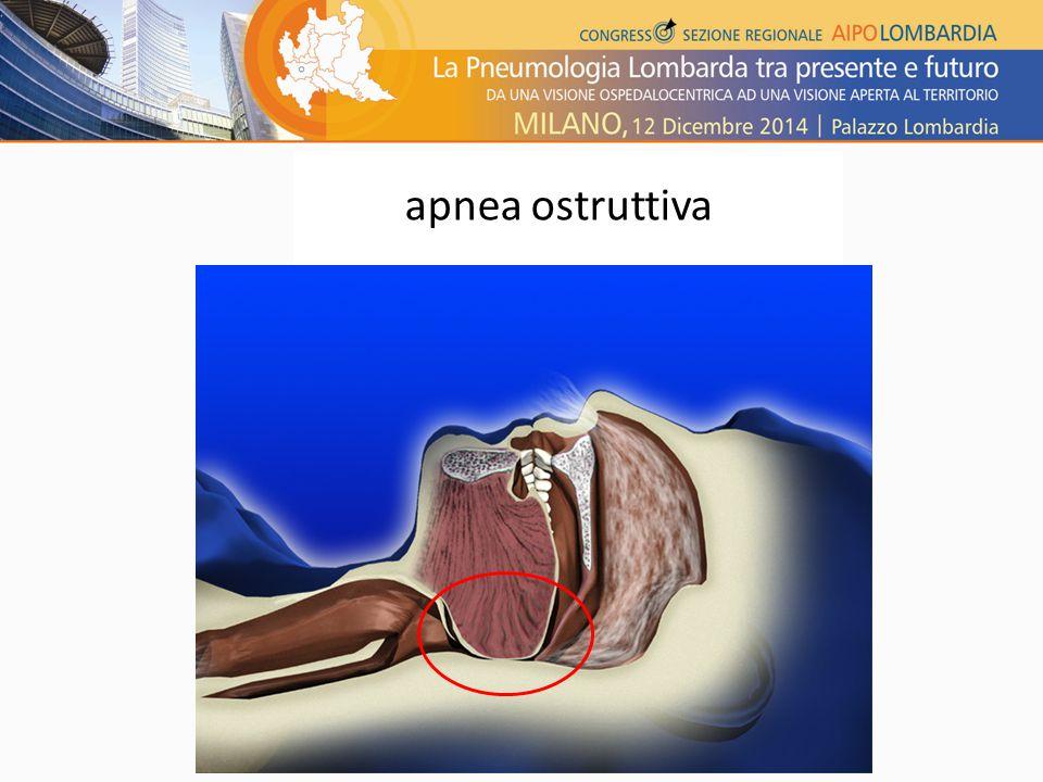 apnea ostruttiva