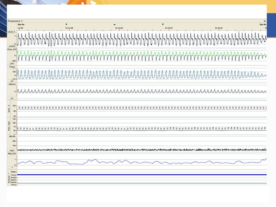 In questa dia manca EEG ma è presente il decubito (fianco dx).