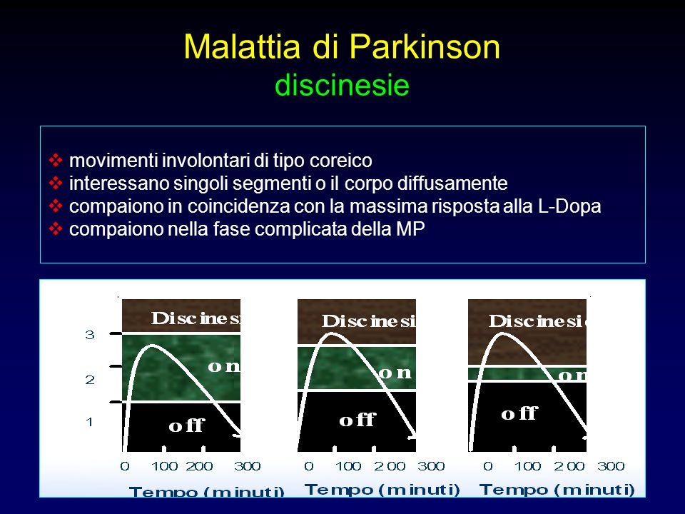 Malattia di Parkinson discinesie