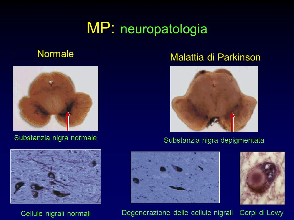 MP: neuropatologia Normale Malattia di Parkinson