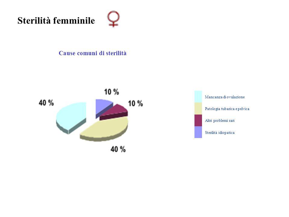 Sterilità femminile Cause comuni di sterilità Mancanza di ovulazione