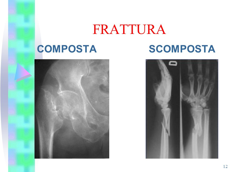 FRATTURA COMPOSTA SCOMPOSTA