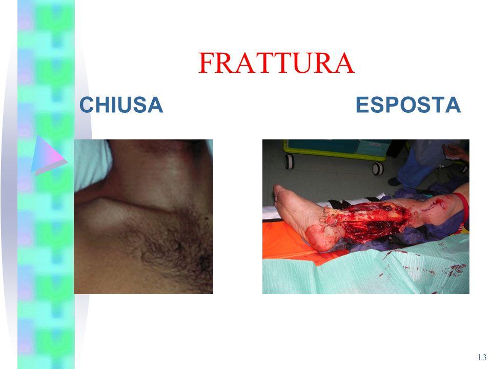 FRATTURA CHIUSA ESPOSTA