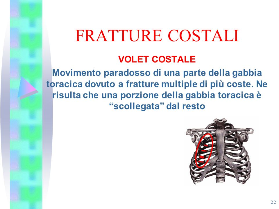 FRATTURE COSTALI VOLET COSTALE