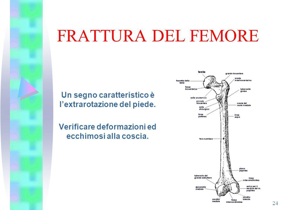 FRATTURA DEL FEMORE Un segno caratteristico è l'extrarotazione del piede.