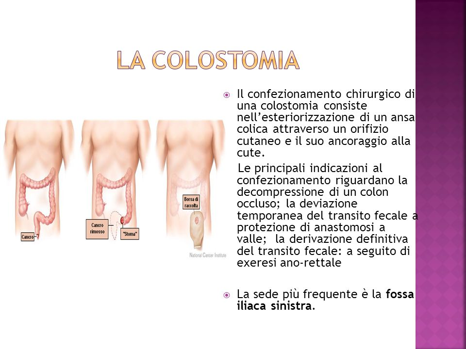 LA COLOSTOMIA