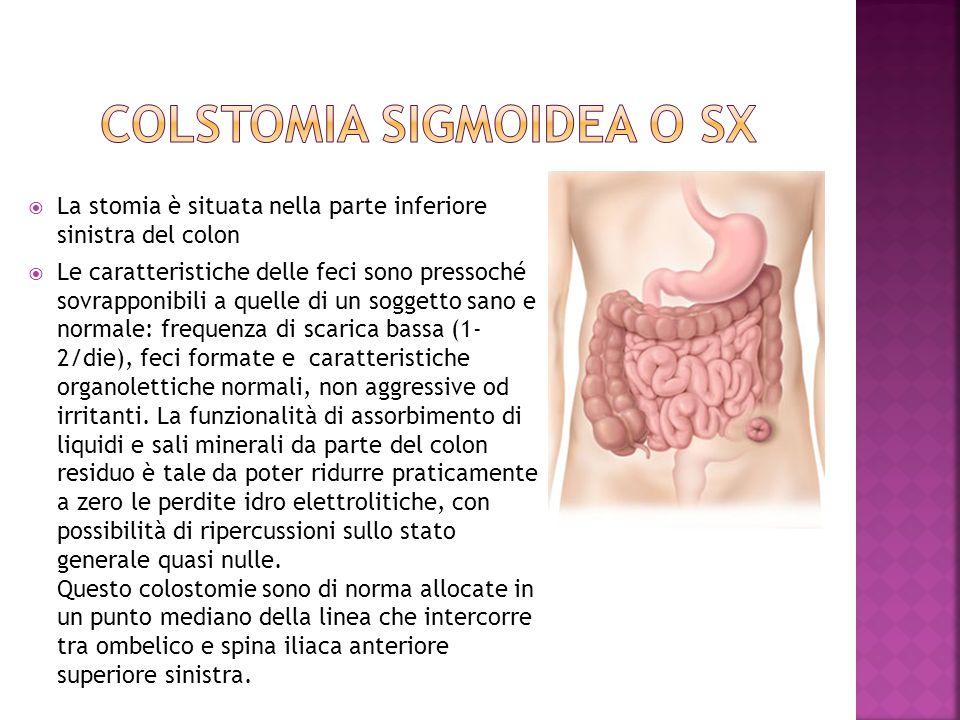 COLSTOMIA SIGMOIDEA o sx