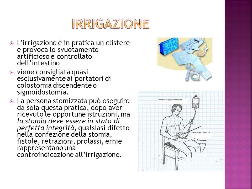 IRRIGAZIONE L'irrigazione è in pratica un clistere e provoca lo svuotamento artificioso e controllato dell'intestino.