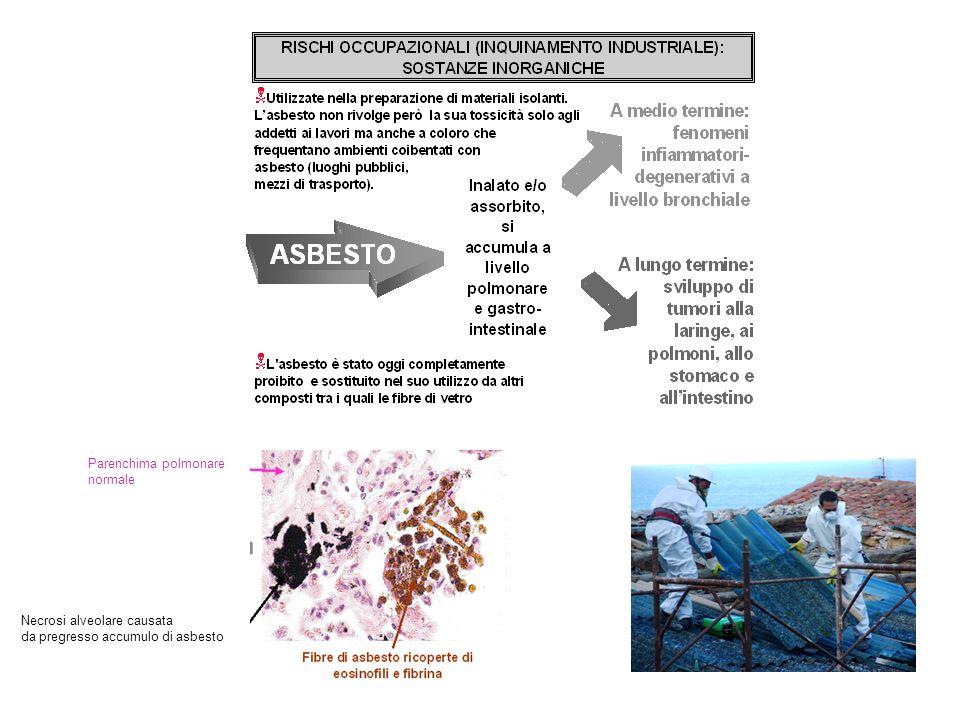 Parenchima polmonare normale Necrosi alveolare causata da pregresso accumulo di asbesto