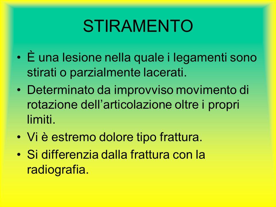 STIRAMENTO È una lesione nella quale i legamenti sono stirati o parzialmente lacerati.