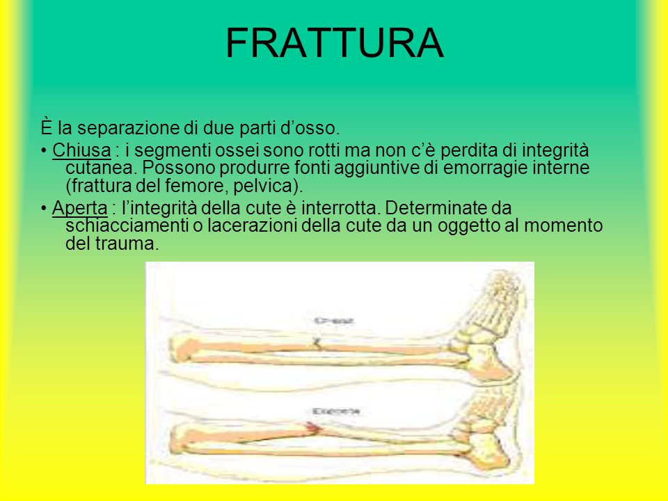 FRATTURA È la separazione di due parti d'osso.