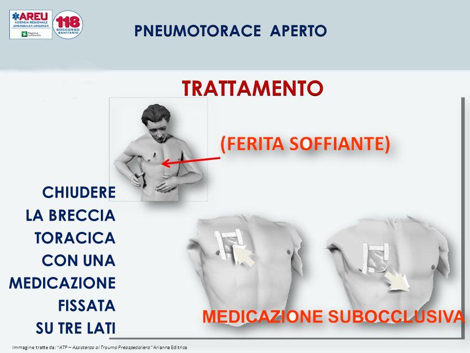 TRATTAMENTO CHIUDERE LA BRECCIA TORACICA CON UNA MEDICAZIONE FISSATA
