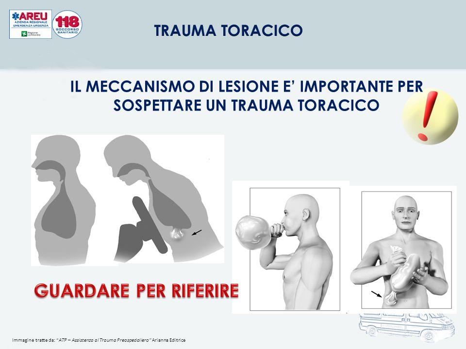 TRAUMA TORACICO IL MECCANISMO DI LESIONE E' IMPORTANTE PER SOSPETTARE UN TRAUMA TORACICO.