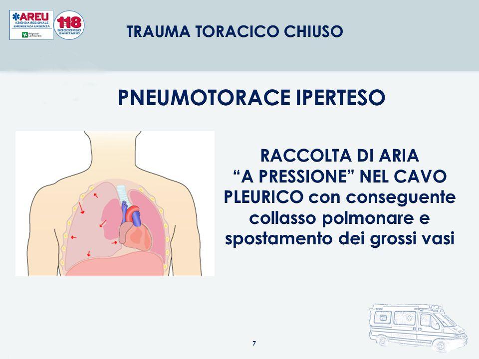 TRAUMA TORACICO CHIUSO PNEUMOTORACE IPERTESO