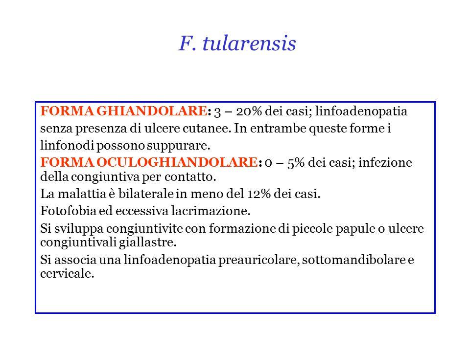 F. tularensis FORMA GHIANDOLARE: 3 – 20% dei casi; linfoadenopatia