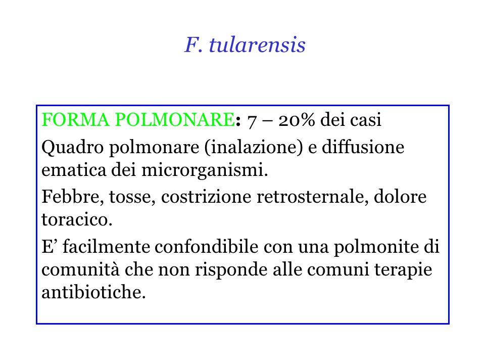 F. tularensis FORMA POLMONARE: 7 – 20% dei casi
