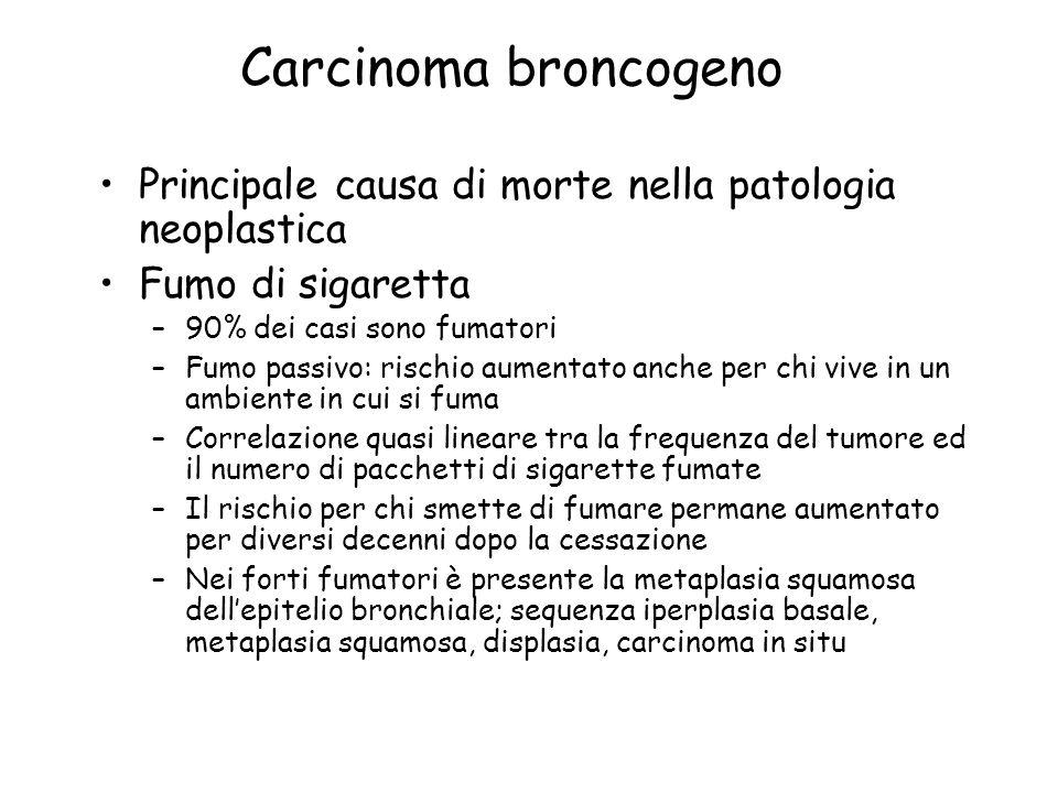 Carcinoma broncogeno Principale causa di morte nella patologia neoplastica. Fumo di sigaretta. 90% dei casi sono fumatori.