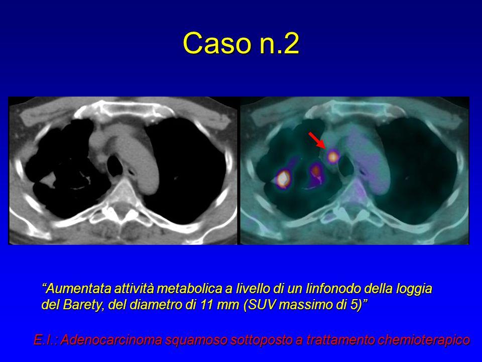 Caso n.2 Aumentata attività metabolica a livello di un linfonodo della loggia del Barety, del diametro di 11 mm (SUV massimo di 5)