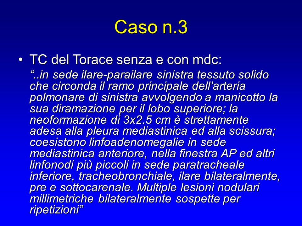 Caso n.3 TC del Torace senza e con mdc:
