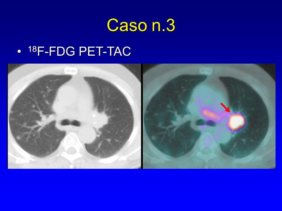 Caso n.3 18F-FDG PET-TAC