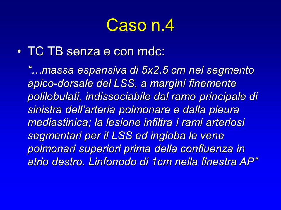 Caso n.4 TC TB senza e con mdc: