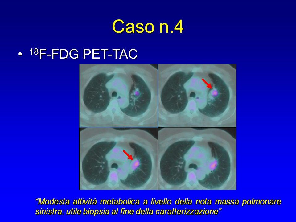 Caso n.4 18F-FDG PET-TAC.